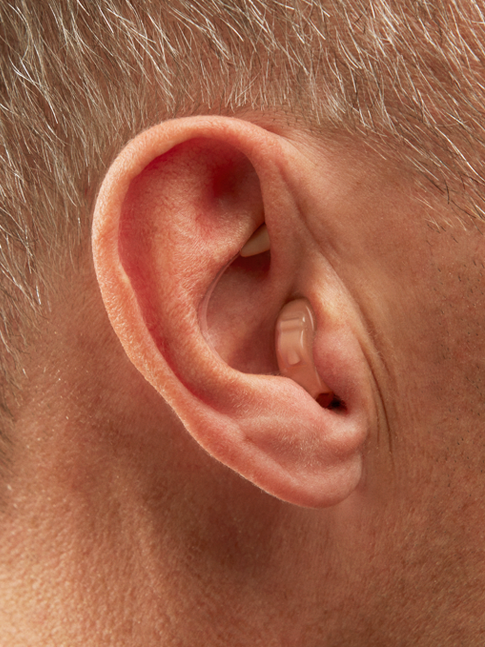 Mic In Helix hearing aids