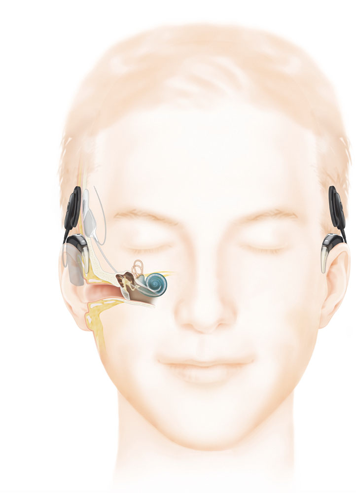 Cochlear implants illustration
